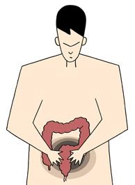 大腸がん初期症状